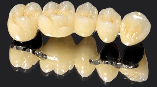 поставить на зубы металлокерамические протезы