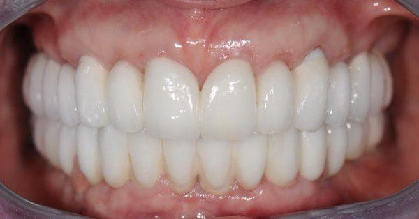 протезы для передних зубов – виниры и люминиры