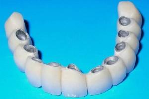 акционная скидка в 23% в стоматологии города Уфы