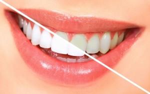 белоснежная улыбка в стоматологии «DentalCare-Уфа»