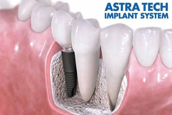 импланты Astra Tech Швеция